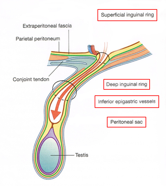 5. Formation of Indirect and Direct Inguinal Hernias -   &nbsp ...
