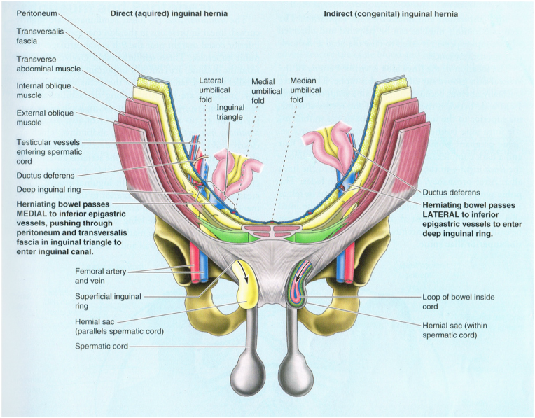 4 Classification Of Inguinal Hernias Nbsp Nbsp Nbsp Nbsp